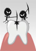 龋齿的危害