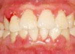 牙龈出血是什么原因