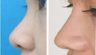 鼻部修复前后对比图
