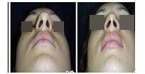 鼻尖整形前后对比图