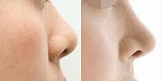 鼻头肥大案例二