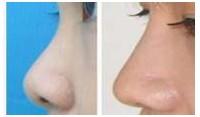 鼻翼肥大整形前后对比图