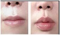 唇珠修复案例一