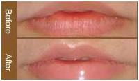 唇珠修复案例二