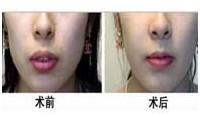 厚唇变薄案例一