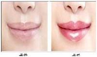 厚唇变薄案例三