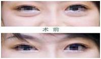 微创祛眼袋案例