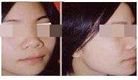 歪鼻整形前后对比图
