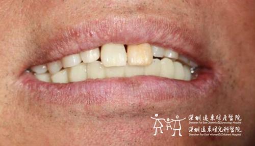 林大爷又恢复了满口牙齿