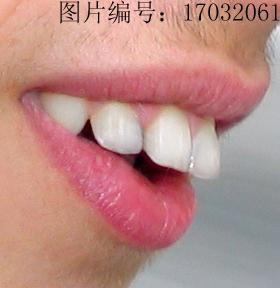牙齿矫正需要几年