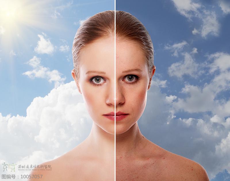 激光祛斑后多久可以正常饮食