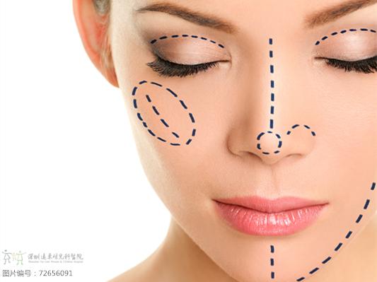 割双眼皮后的第三个阶段