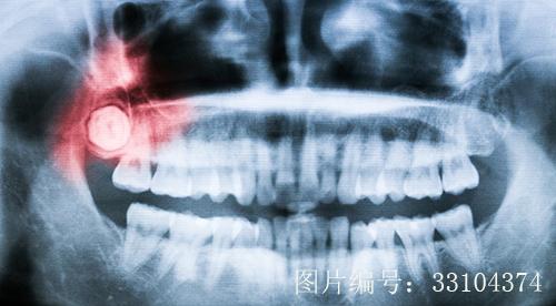 牙疼的原因是什么