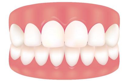 牙齿松动脱落全过程