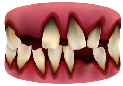 牙齿完全脱落