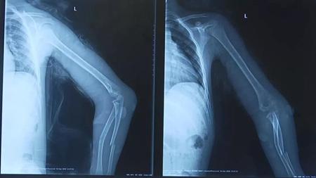 8岁男童骨折的骨折图