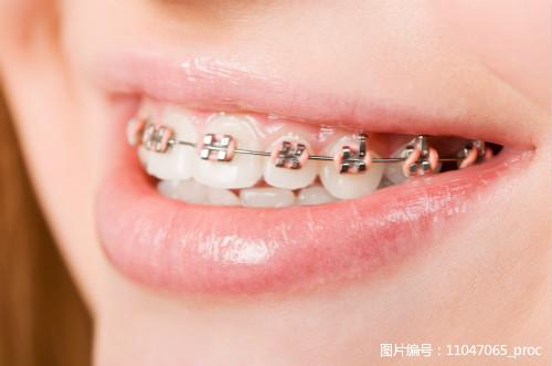 成人隐形牙齿矫正