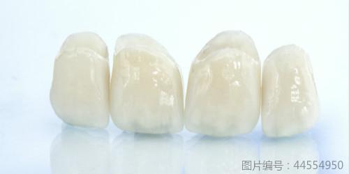烤瓷牙假牙多少钱