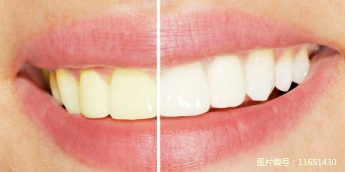 牙黄美白多少钱