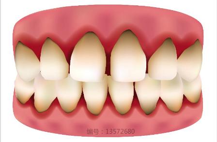 牙黄怎么办