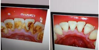 洗牙多少钱