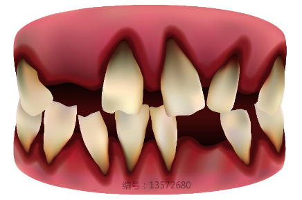 补牙的过程是什么