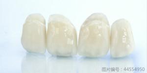 烤瓷牙和全瓷牙有什么区别