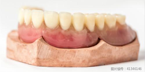 种植牙多少钱