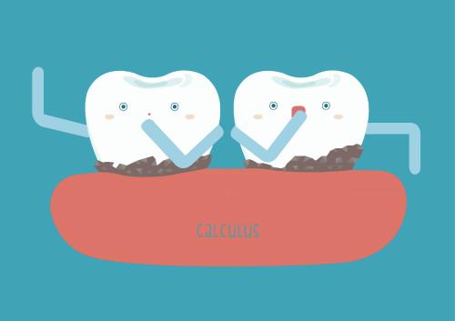 牙结石牙龈出血