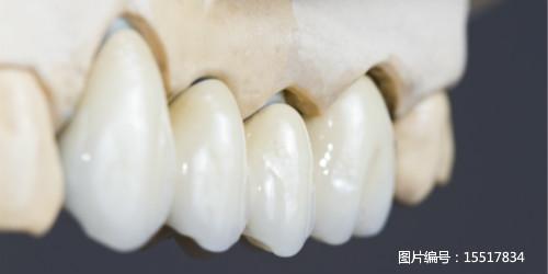 补牙根管治疗
