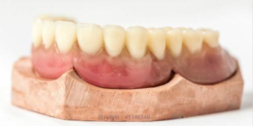 根管治疗后做牙冠