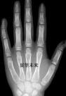 骨龄测试结果:骨龄未融合
