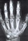 骨龄测试结果:骨龄已融合